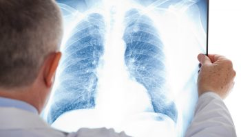 Medical patients at high risk for hospital-acquired pneumonia